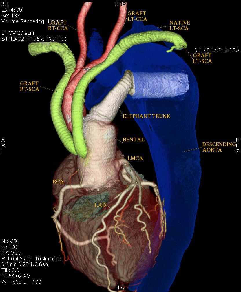 Uncategorized | Asian Heart Institute | Page 13